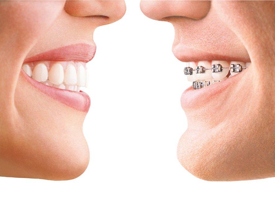 Invisalign: el poder de una nueva sonrisa
