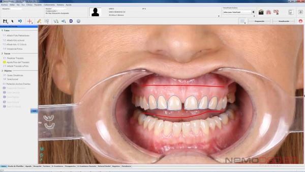 Sedación consciente: la solución a la fobia al dentista