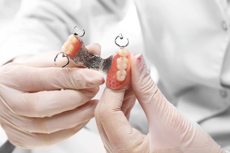 Pròtesis dentals removibles