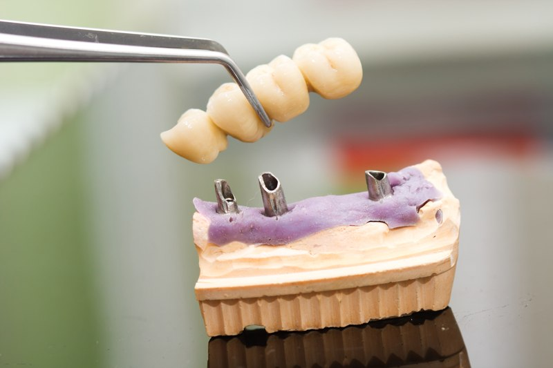 Pròtesis Dentals Fixes