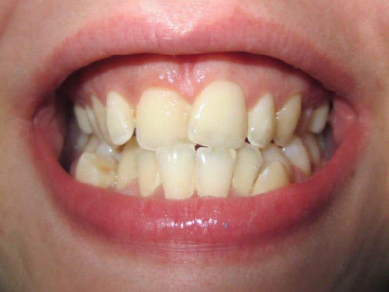 Extraccions en el maxil·lar inferior