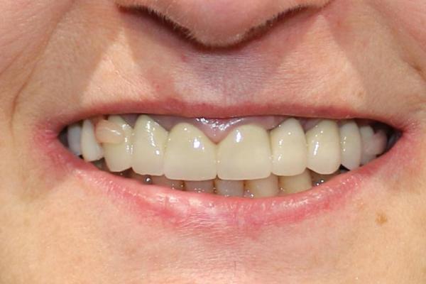 Témoignages - Sanz Clinique dentaire