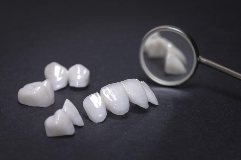 ¿Las carillas dentales duran toda la vida?