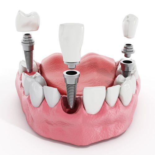¿Implantes dentales? Lo que debes saber antes de iniciar el tratamiento