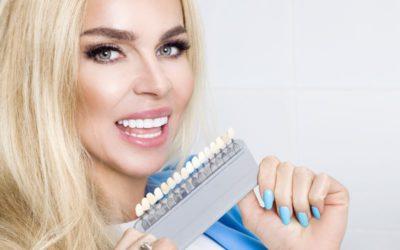 El poder de las carillas dentales