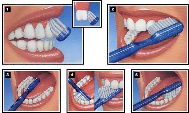 ¿Qué es la periodoncia y qué factores influyen?