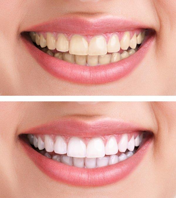 Blanqueamiento dental: la estética no debería afectar a la salud