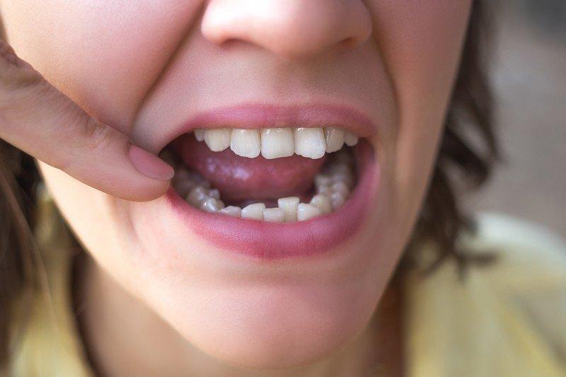 Morderte las uñas perjudica tus dientes