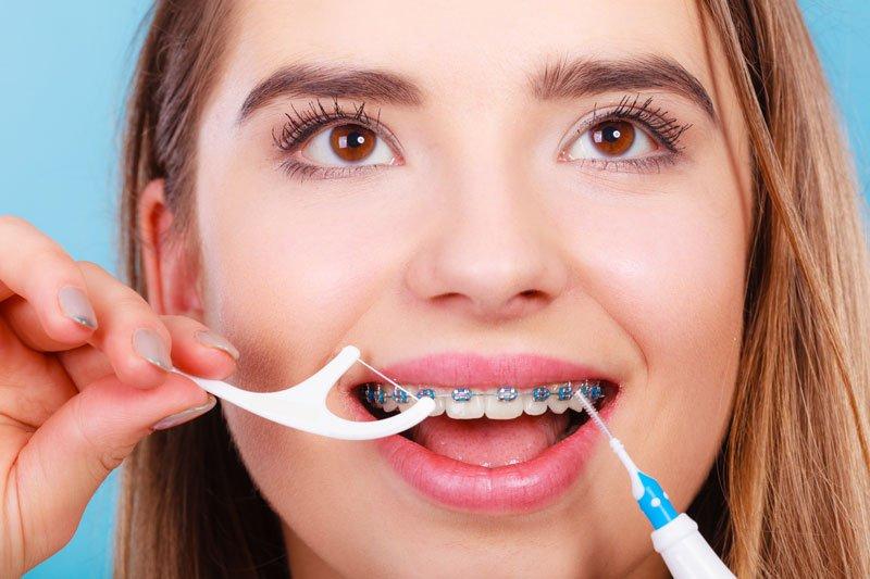 8 consejos importantes para el éxito de la ortodoncia