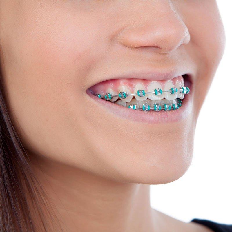 Los 8 consejos más importantes para el éxito de la ortodoncia