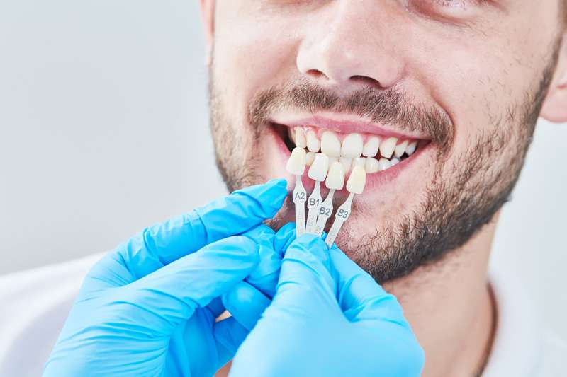Tener dientes perfectos, ¿es posible?