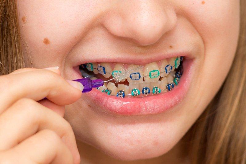 Ortodoncia en niños y adolescentes
