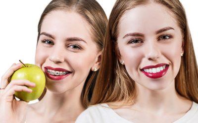 ¿Cuáles son las fases en los tratamientos de ortodoncia?