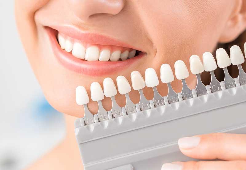 si quiero blanquear los dientes pese a tener un implante más oscuro