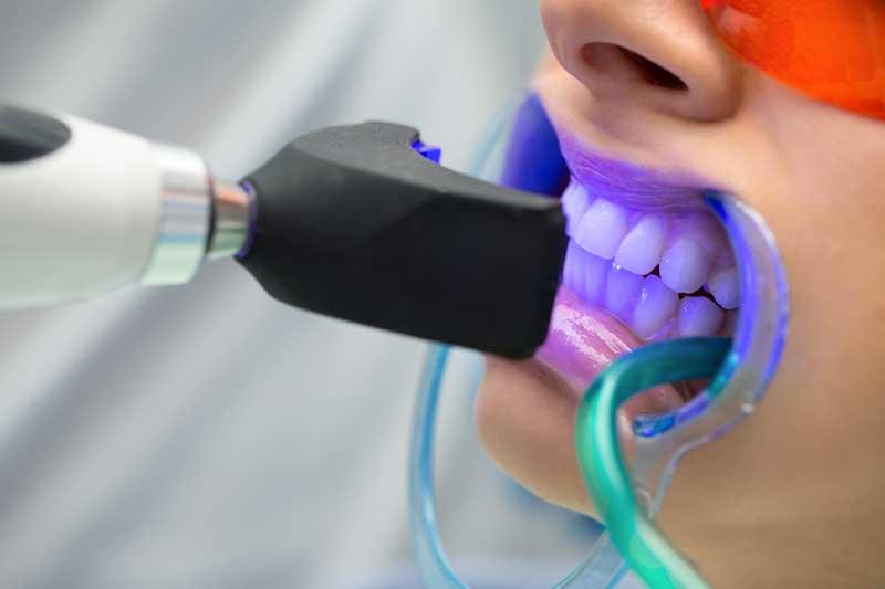 cómo se puede hacer un blanqueamiento dental sobre implantes