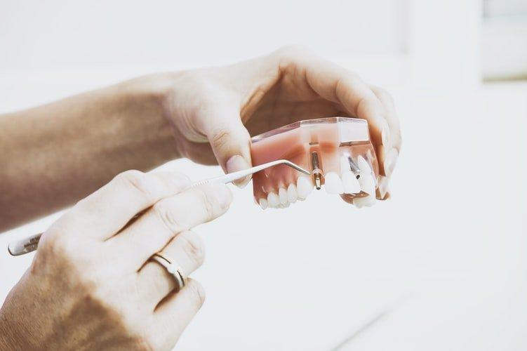 Quin preu tenen els implants dentals?