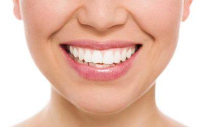 Obsequiamos un blanqueamiento dental