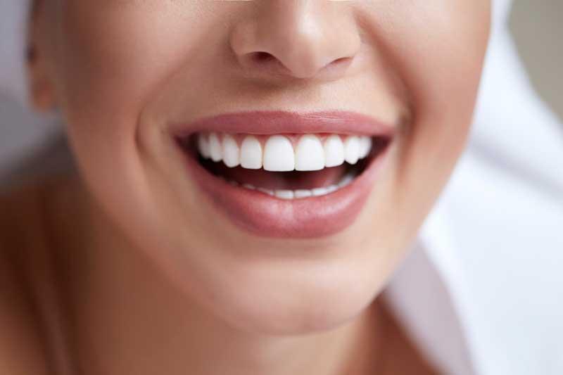 El mejor tratamiento de estética dental: las carillas dentales