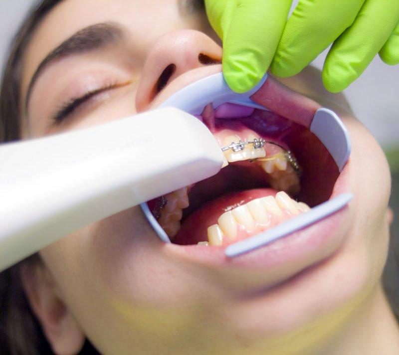 ortodoncia para adultos en época de covid