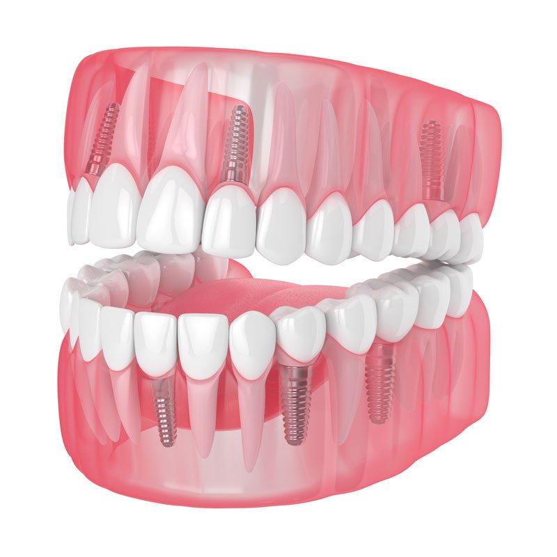 trabajamos con implantes dentales straumann
