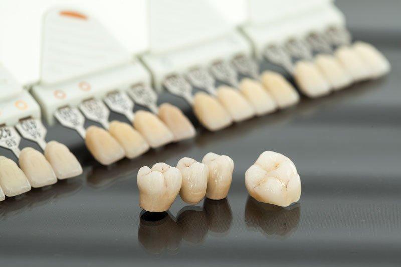 Implantes dentales o puentes dentales, ¿qué tratamiento elegir?