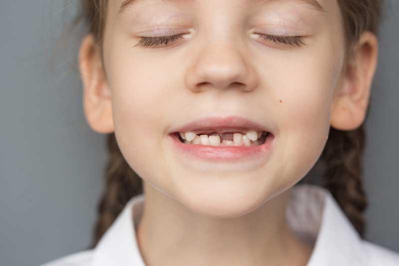 Solución a la agenesia dental