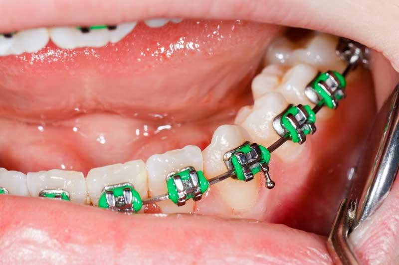 Gomas ortodoncia