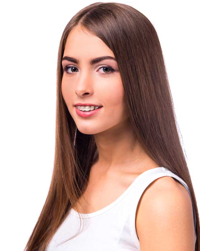 Gomas de ortodoncia o elásticos intermaxilares