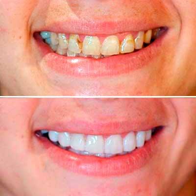 Casos Clínicos Sanz Clínica Dental