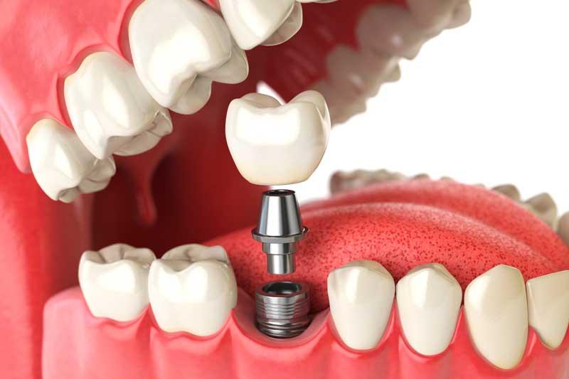 ¿Cómo tenemos que cuidar los implantes dentales?