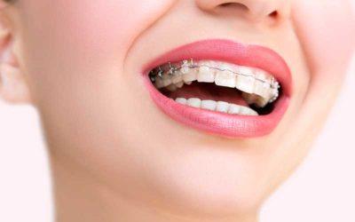 Ortodoncia para adultos: nunca es tarde