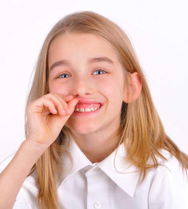 Qué entendemos por sonrisa gingival