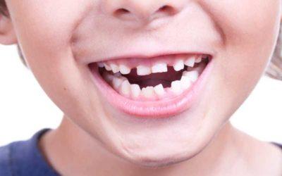 ¿Qué malos hábitos infantiles afectan al crecimiento de los dientes?