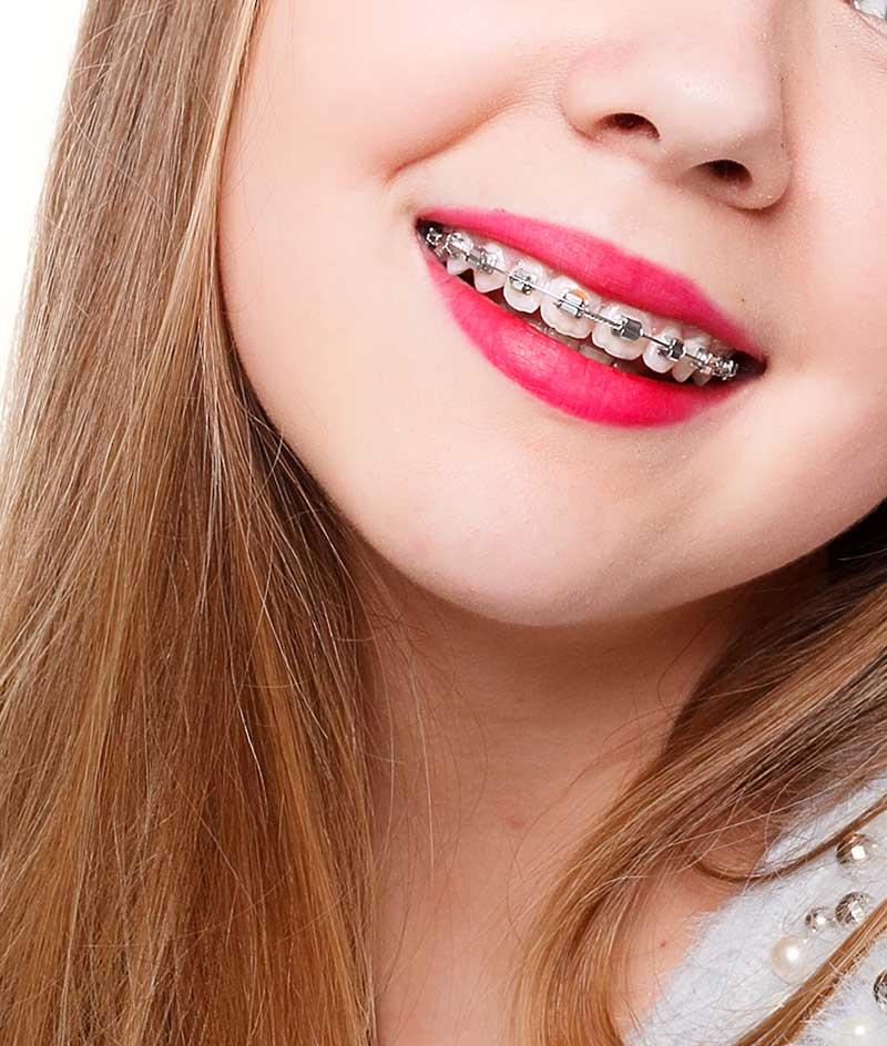 Los resultados de la ortodoncia no se pierden con el tiempo