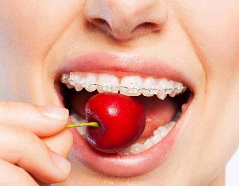 Mito ortodoncia: no se puede comer nada