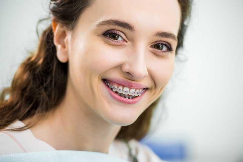 Mitos y verdades sobre la ortodoncia